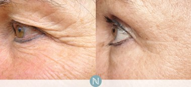 Nerium-real-results-3